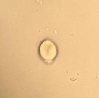 Isospora oocytes